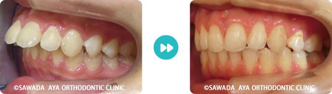 大人の治療例⑤ 出っ歯 抜歯治療